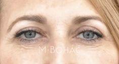 Operácia očných viečok (Blepharoplastika) - Fotka pred - MB CLINIC