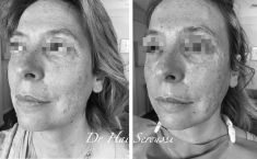 Lifting Facial Silhouette Soft - Cliché avant - Dr Hai Seroussi