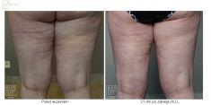Ultraschall-Liposuktion - Vorher Foto - Bieńkowscy Clinic®