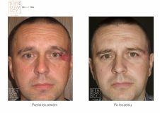 Leczenie naczyniaków (haemangioma) - Zdjęcie przed - Dr Ilona Wnuk-Bieńkowska