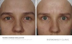 Eyelid surgery (Blepharoplasty) - Photo before - Bieńkowscy Clinic®