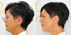 Non Surgical Lift - Photo before - Klinika YES VISAGE - klinika estetické medicíny a plastické chirurgie