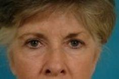 Eyelid surgery (Blepharoplasty) - Photo before - Dr. Dennis Hammond