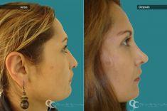 Cirugía de la nariz (Rinoplastia) - Paciente con nariz grande y Rinocifosis después  de la rinoplastia vemos una nariz natural armónica al rostro mejorando el perfil Femenino