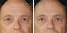 Operacija očnih kapaka (blefaroplastika) - Fotografija prije - Poliklinika za estetsku kirurgiju Dr. Tončić