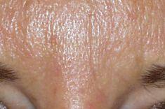 Botox/Dysport - Eliminar arrugas - Foto Antes de - Dr. Ramón Vila-Rovira