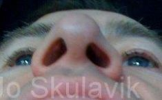 Plastika nosu (Rhinoplastika) - fotka před - Dr. med. Jozefina Skulavik