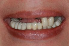 Dental implants - Photo before