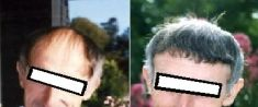 Greffe de cheveux - Cliché avant - Docteur GRANGÉ-PRADERAS