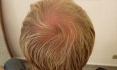 Trapianto capelli - Foto del prima - Dott. Naser Jabbarpour