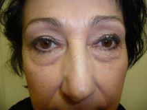 Operace očních víček (Blefaroplastika) - Klienka s velkými nadbytky horních víček, ale i  dominantními nadbytky dolních víček. I při nemožnosti odstranit vrásky na dolních víčcích zmizely pytle zdůrazňující únavu.