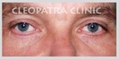 Korekcja powiek (Blepharoplastyka) - Zdjęcie przed