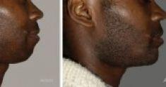 Chirurgie du double-menton - Cliché avant - Dr Franck Ouakil
