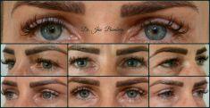 Operácia očných viečok (Blepharoplastika) - Blepharoplastika horných viečok