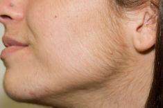 Laserová epilace, depilace - odstranění chloupků - fotka před - LaserPlastic