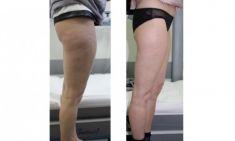 Treatment of cellulite - Photo before - ARS ESTETICA – Klinika Medycyny Estetycznej i Laseroterapii