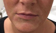 Operácia pier (Augmentácia) - Fotka pred - Klinika YES VISAGE - klinika estetickej medicíny a plastickej chirurgie