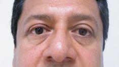 Cirugía de párpados (Blefaroplastia) - Foto Antes de - Dra. Nashielli Torres Espinosa