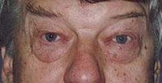Operace očních víček (Blefaroplastika) - fotka před - Prim. MUDr. Hubert Topinka