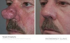 Mole removal - Photo before - Dr n. med. Marcin Bieńkowski