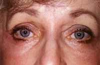 Operace očních víček (Blefaroplastika) - fotka před - MUDr. Zuzana Černá Ph.D.