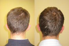 Ear surgery (Otoplasty) - Photo before - ARS ESTETICA – Klinika Medycyny Estetycznej i Laseroterapii