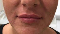 Lippenvergrößerung - Vorher Foto - Klinika YES VISAGE - klinika estetickej medicíny a plastickej chirurgie