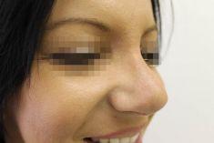 Plastika nosu (Rhinoplastika) - Optimální vyrovnání nosu