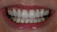 Keramikschalen für Zähne - Vorher Foto