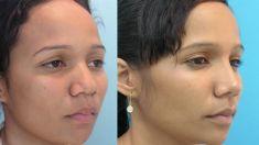 Cirugía de la nariz (Rinoplastia) - Foto Antes de - Dr. Boris Henríquez González