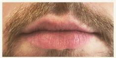 Zvětšení rtů kyselinou hyaluronovou - fotka před - Neo Beauty Clinic