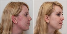 Laser acne treatment - Photo before - MEDICOM Clinic