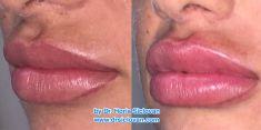 Lip augmentation - cheiloplasty - Photo before - Dr. Horia Remus Siclovan