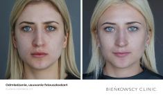Fotorejuvenation  - Photo before - Bieńkowscy Clinic®