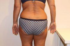 Alternativa liposukce - neinvazivní odstranění tuku a celulitidy - Alternativa liposukce, formování, hubnutí postavy pro podnikatele, (lipolaser liposukce více partií břicho) po 12 kúrách, úbytek 10 cm, Praha 9, Vyzkoušejte