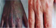 Rimozione tatuaggi - laser - Foto del prima - Dott. Alessandro Nube