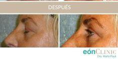 Cirugía de párpados (Blefaroplastia) - Cirugía de párpados puede resolver el exceso de piel del párpado superior. En la foto se ve una de las pacientes satisfechas de la Dra. Marta Payá que se sometió a la blefaroplastia superior.