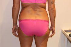 Alternativa liposukce - neinvazivní odstranění tuku a celulitidy - Bezbolestná liposukce, hubnutí zad a hýždí po osmi procedúrách, úbytek 9 cm, Beauty studio Dana, Praha 9, Vyzkoušejte a výsledek uvidíte hned.
