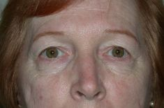 Eyelid surgery (Blepharoplasty) - Photo before - Diana Breister Ghosh, M.D.