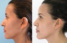 Cirugía de la nariz (Rinoplastia) - Foto Antes de - Dr. Basilio Henríquez Tejeda