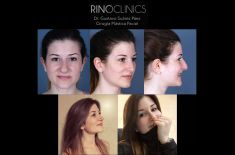 Cirugía de la nariz (Rinoplastia) - Rinoplastia ultrasónica