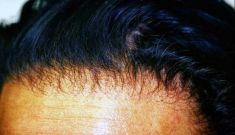 Hair Transplant - Photo before - PANACEA HAIR CLINIC