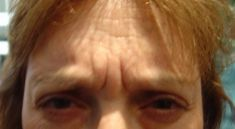 Botox/Dysport - Eliminar arrugas - Foto Antes de - Dr. Gustavo Kovalovsky