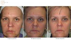 Laser Scar Treatment - Photo before - Dr Ilona Wnuk-Bieńkowska