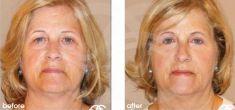 Cirugía de párpados (Blefaroplastia) - Foto Antes de - Ocean Clinic Marbella