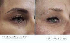 Laserowe usuwanie tatuażu i pigmentów - Zdjęcie przed - Dr Ilona Wnuk-Bieńkowska