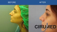Cirugía de la nariz (Rinoplastia) - Foto Antes de - Dr. Alexander Amir Aslani