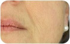 PRP – Plazma terapia (Drakula terapia) - Fotka pred - MEDICAL MKP