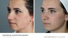 Spider veins laser removal (redness, birh marks) - Photo before - Bieńkowscy Clinic®