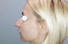 Rhinoplasty (Nose Job) - Photo before - dr hab. n. med. Paweł Szychta prof. nadzw.
